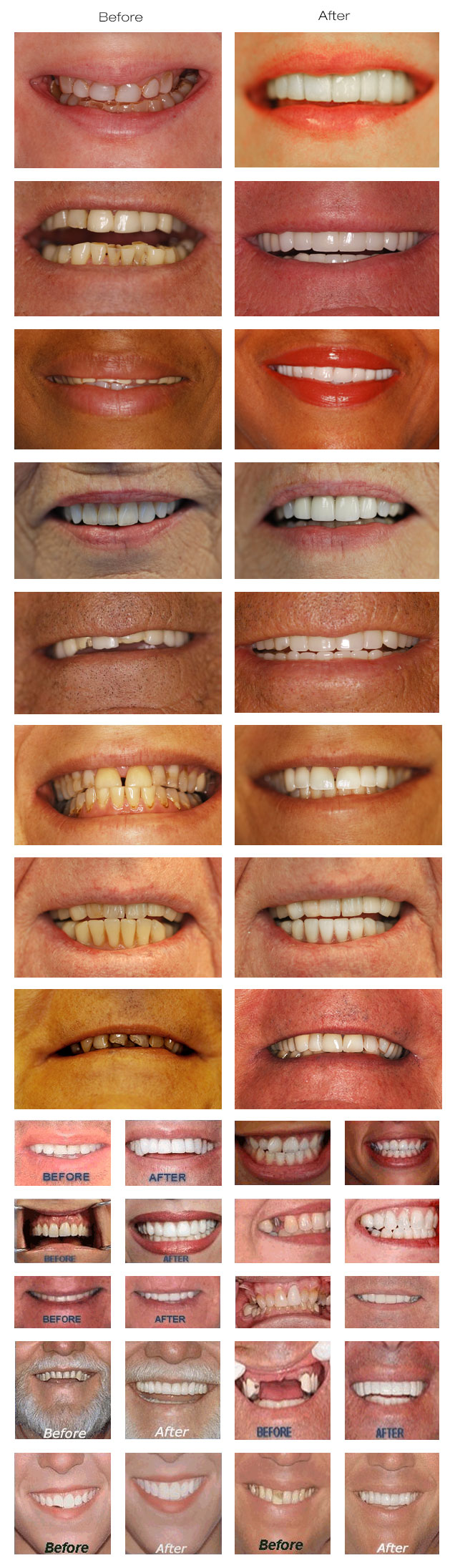Before and After Smile Makeovers