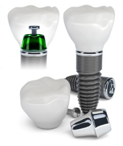 Teeth in a Day: Dental implants in one day