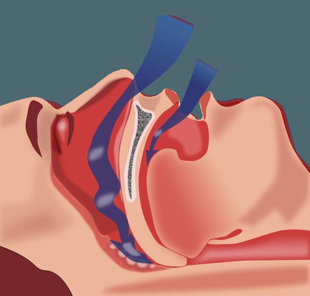 sleep apnea mouth guard