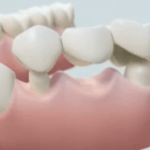 Why Do I Need a Bridge  » Dr Stone DDS