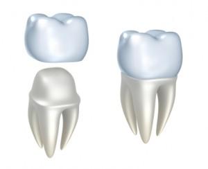 Dental Caps | Tooth Cap