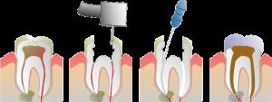 Dental Post - Root Canal Proceedure
