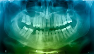 Dental implants procedure xrays