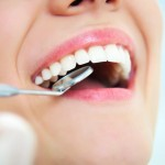Dental Veneers: Checkups