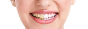 Prosthodontist Cosmetic Enhancement