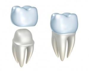 Tooth Cap
