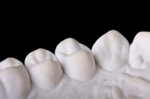 Capped Teeth: Dental impression