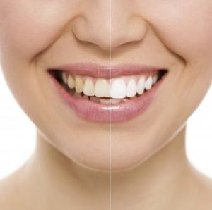 cheap-dental-implants-Health
