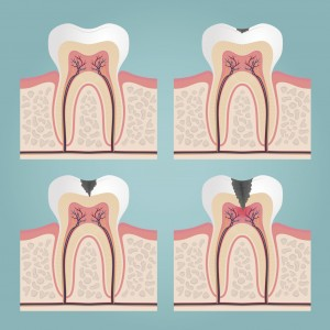 Croen Tooth Pain: Pulpitis