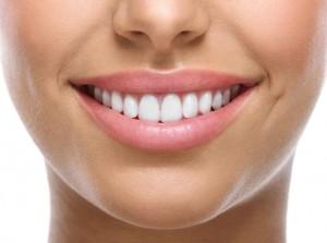 Great smile dental implants