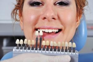 shade determination teeth