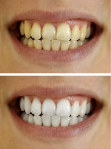 how to get white teeth in a day