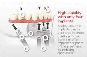 Fixed-Hybrid-Implant-Restoration