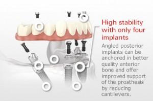 Fixed-Hybrid-Implant-Restoration