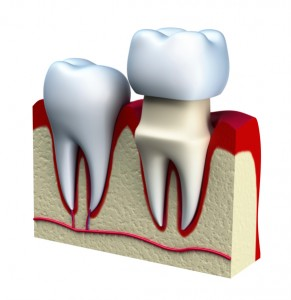 Dental Crowns can last a lifetime.