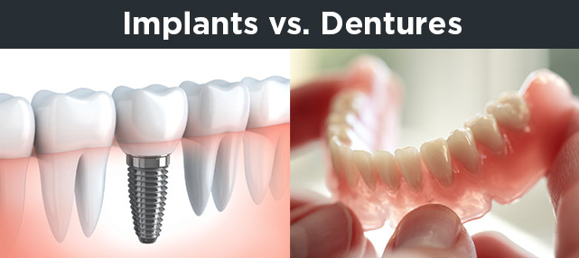 Implants Vs Natural Teeth