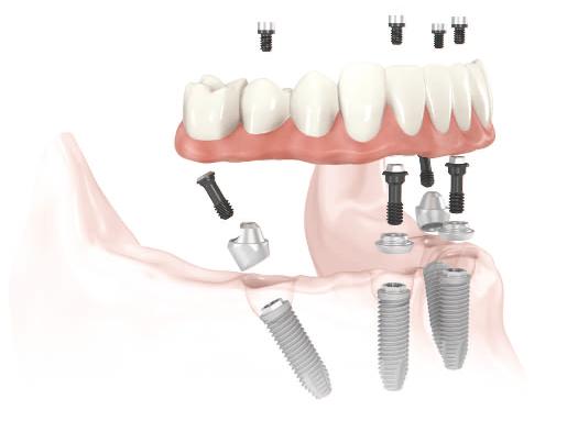 all-on-4-dental-implants2