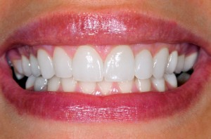 Teeth Reconstruction Dental Veneers