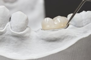 Tooth Reconstruction: Inlays and Onlays