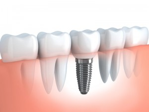 Dental Implant process - Osseointegration