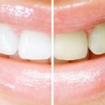 Teeth Whitening kor
