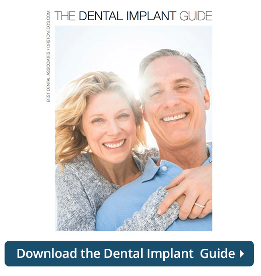 Dental Implant Guide
