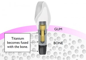 All on 4 Dental Implants - fused