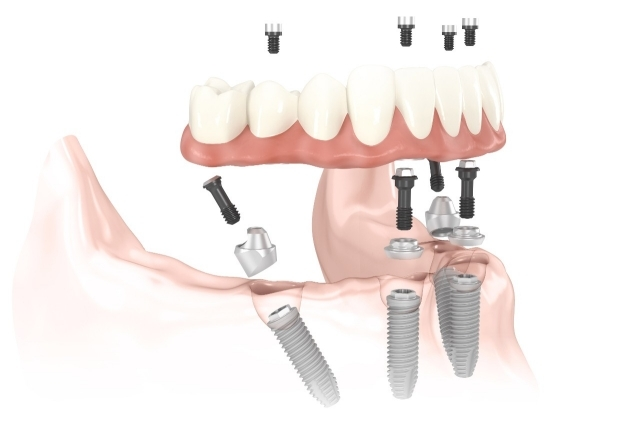 New Teeth in One Day – All-on-Four Dental Implants