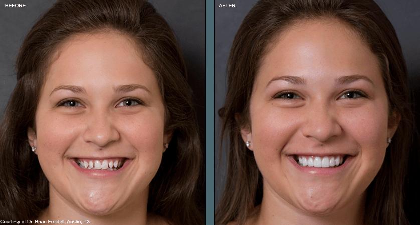 Does Dental Insurance Cover Veneers