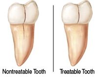 How to Fix a Cracked Tooth - cracks