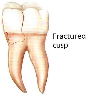 How to Fix a Cracked Tooth - fractured cusp