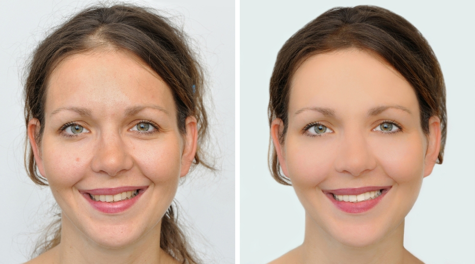 Veneers Cost - before after