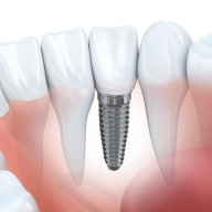 Cost of dental implants - Dental implant