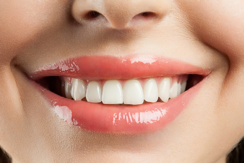 The Average Cost of Dental Implants - What You Need to Know
