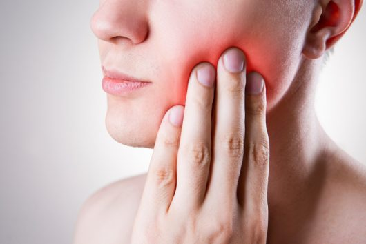 Nerve Tooth Pain