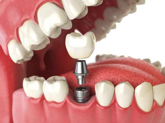 what do molar implants cost dr stone dds