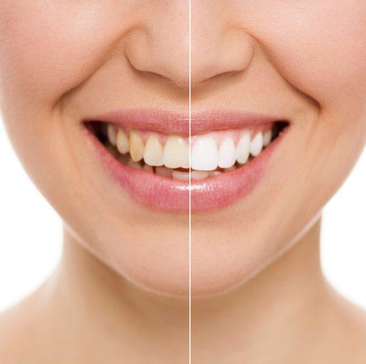 Teeth Naturally Yellow