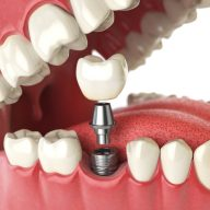 the Difference Between a Tooth Bridge and an Implant