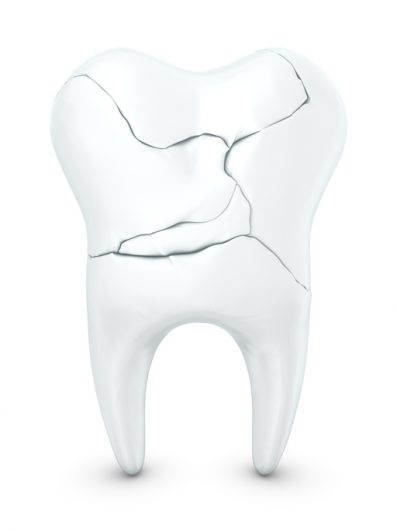 Guidelines on Fixing A Cracked Tooth