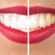 Yellowing Teeth – Causes and Whitening Methods