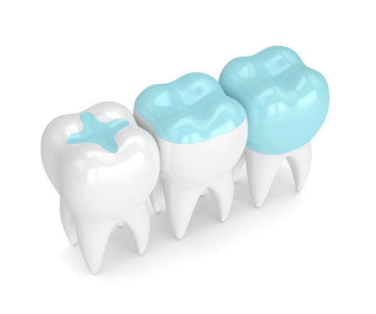 Dental Inlays and Onlays vs Fillings