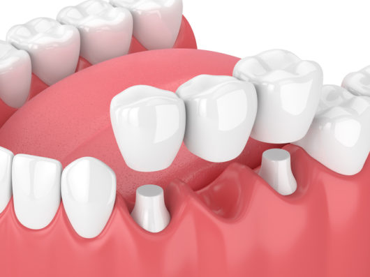 Dental Bridge Pros and Cons