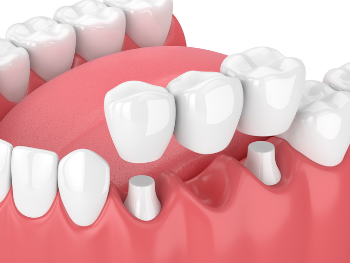 tooth bridge vs implant