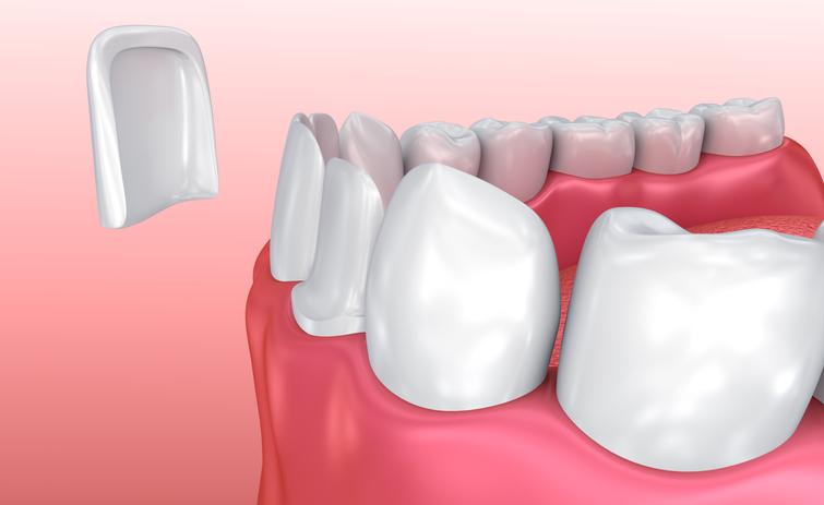 chipped veneer tooth