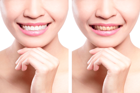 veneers and discoloration